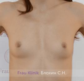 Увеличение груди 198
