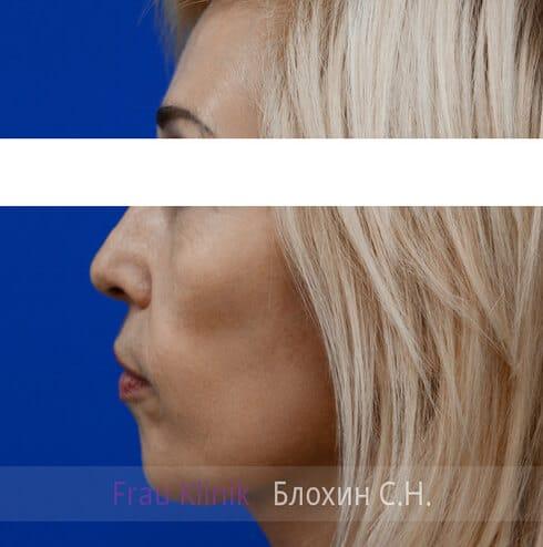Круговая подтяжка лица 15