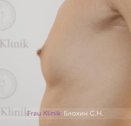 Увеличение груди 196