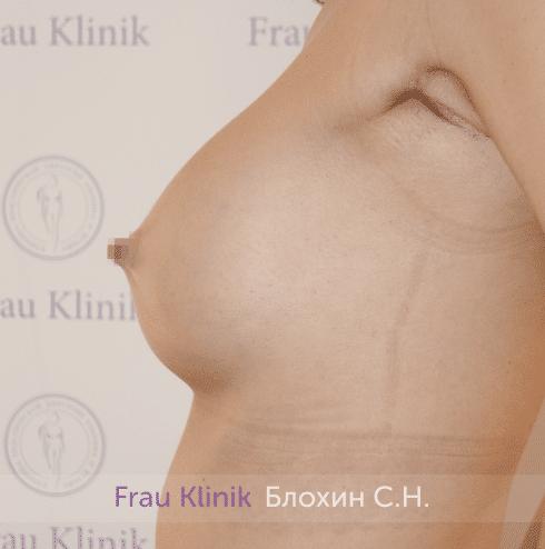 Увеличение груди 197