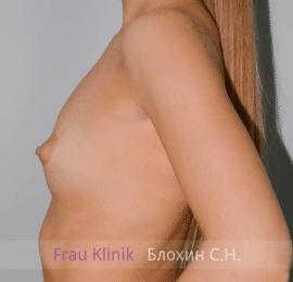 Увеличение груди 44