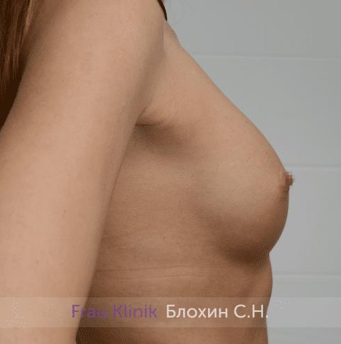 Увеличение груди 213