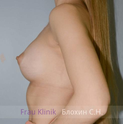 Увеличение груди 45