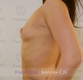 Увеличение груди 72