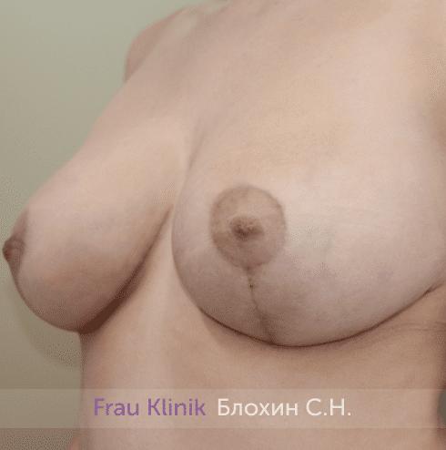 Уменьшение груди 76