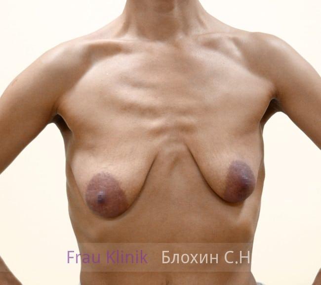 Подтяжка груди с увеличением 49