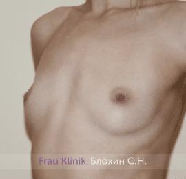 Увеличение груди 206