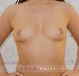 Увеличение груди 76