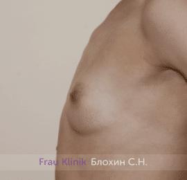 Увеличение груди 222