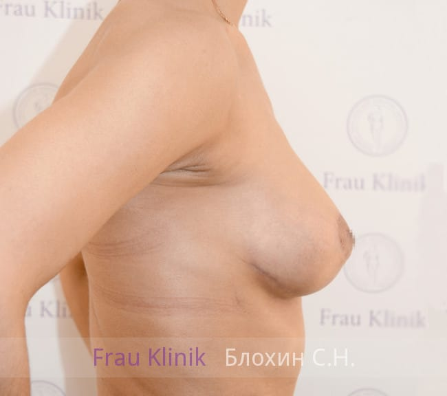 Подтяжка груди с увеличением 54