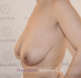 Уменьшение груди 83