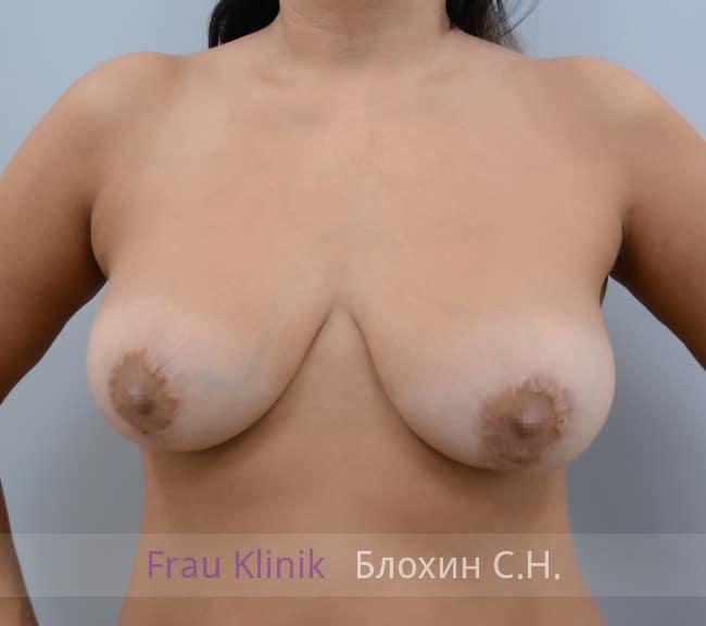 Повторная маммопластика 62