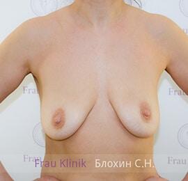 Подтяжка груди 8