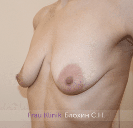 Подтяжка груди 34
