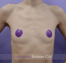 Увеличение груди 180