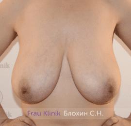 Уменьшение груди 35