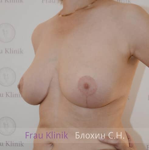 Уменьшение груди 8