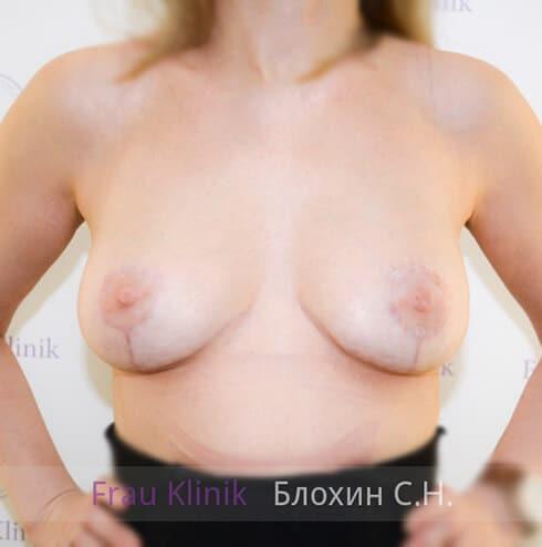 Подтяжка груди 9