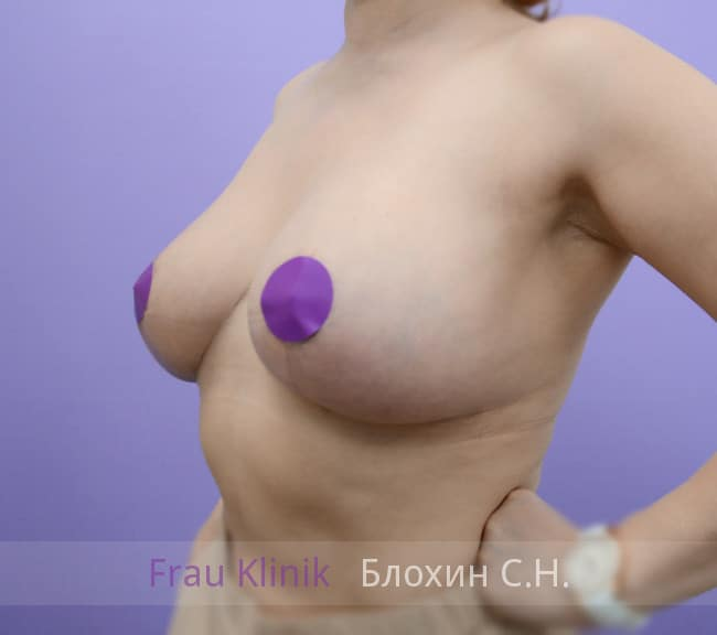 Повторная маммопластика 75