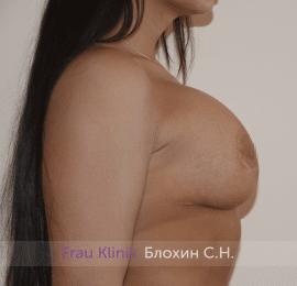Повторная маммопластика 40