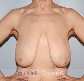 Уменьшение груди 17