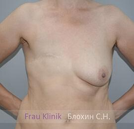 Реконструкция груди 11