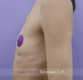 Увеличение груди 160