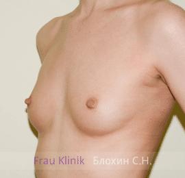 Увеличение груди 104