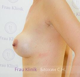 Повторная маммопластика 2