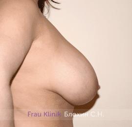 Подтяжка груди 46
