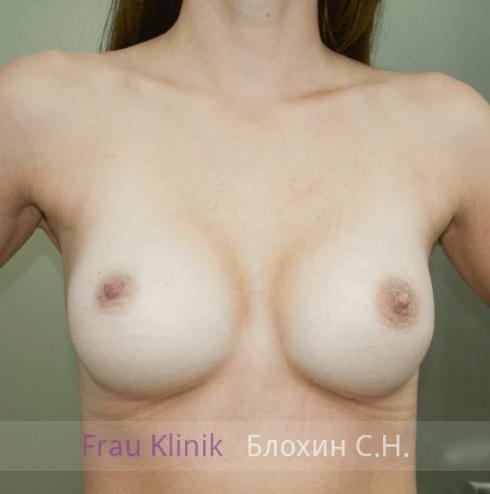 Увеличение груди 97