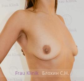 Увеличение груди 126