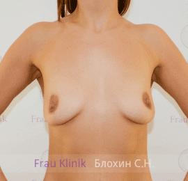 Увеличение груди 106