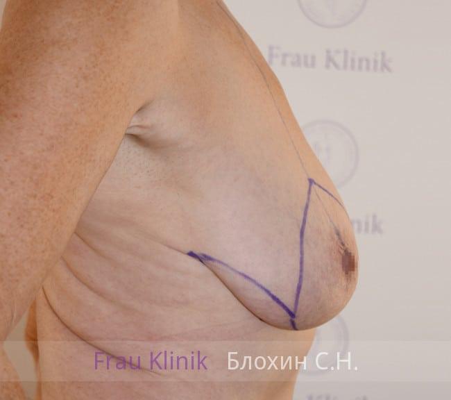 Подтяжка груди 50