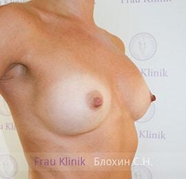 Повторная маммопластика 18