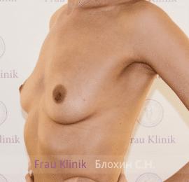 Увеличение груди 20