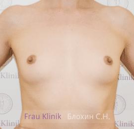 Увеличение груди 12