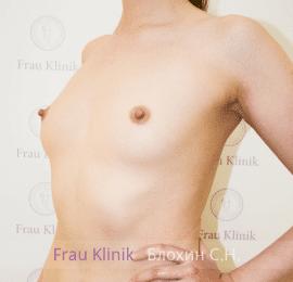 Увеличение груди 10