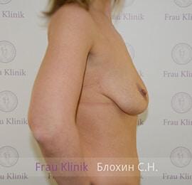 Подтяжка груди 20
