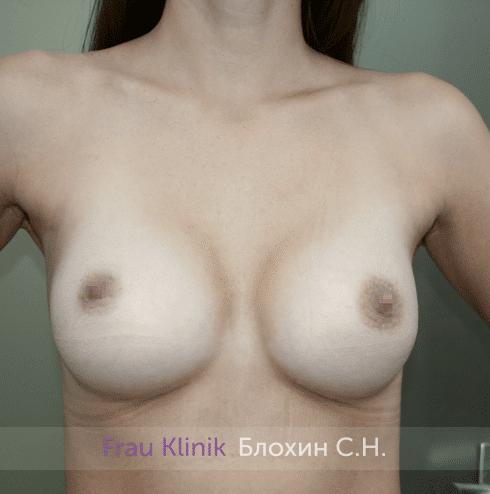 Увеличение груди 173