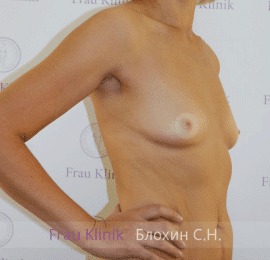 Увеличение груди 150