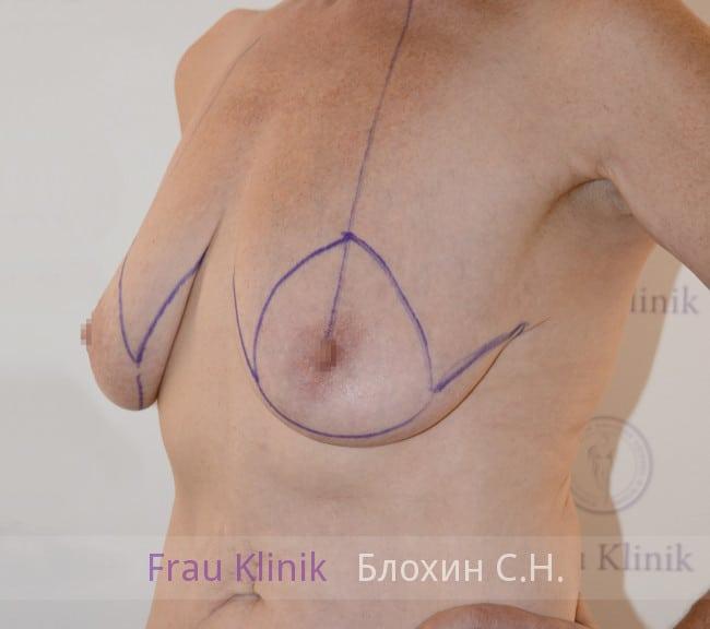 Подтяжка груди 54