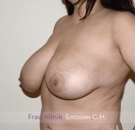 Подтяжка груди 40