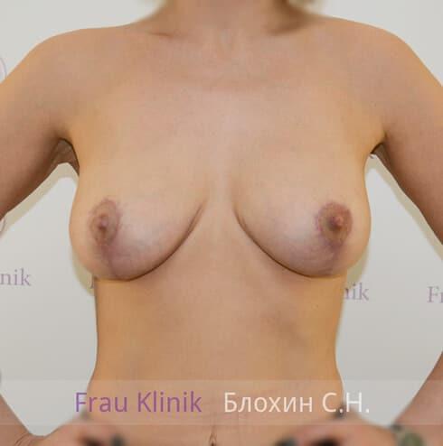 Подтяжка груди 17