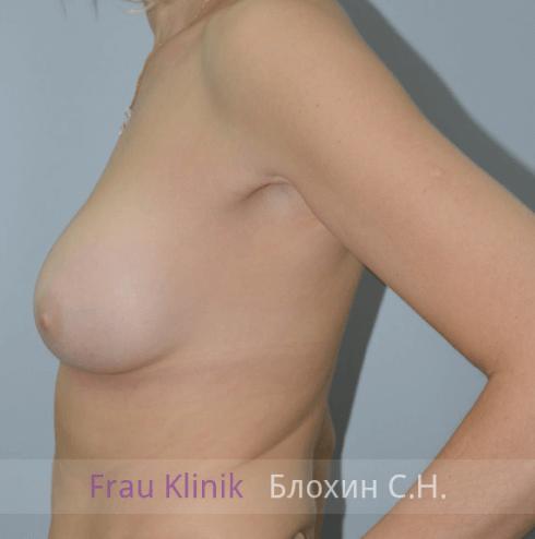 Увеличение груди 127