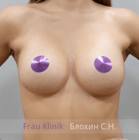 Увеличение груди 141
