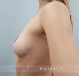 Увеличение груди 136