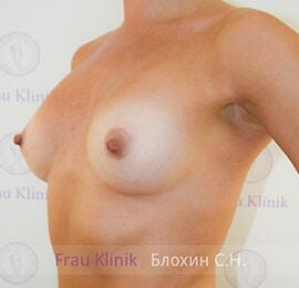Повторная маммопластика 14