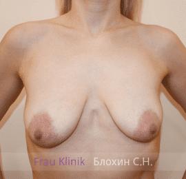 Подтяжка груди с увеличением 39