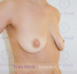 Подтяжка груди с увеличением 23